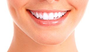clareamento dental caseiro whiteness