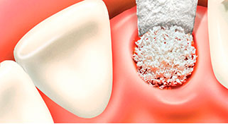 enxerto ósseo dentário valor