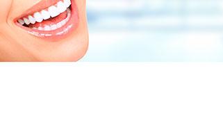 kit branqueamento dentário