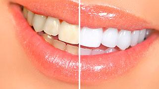 Limpeza e clareamento dental preço