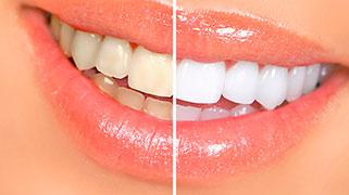 o que clareia os dentes?